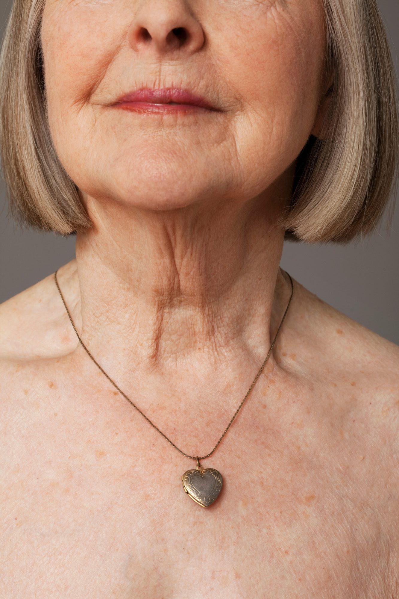 cuello, como mejorar las arrugas del cuello