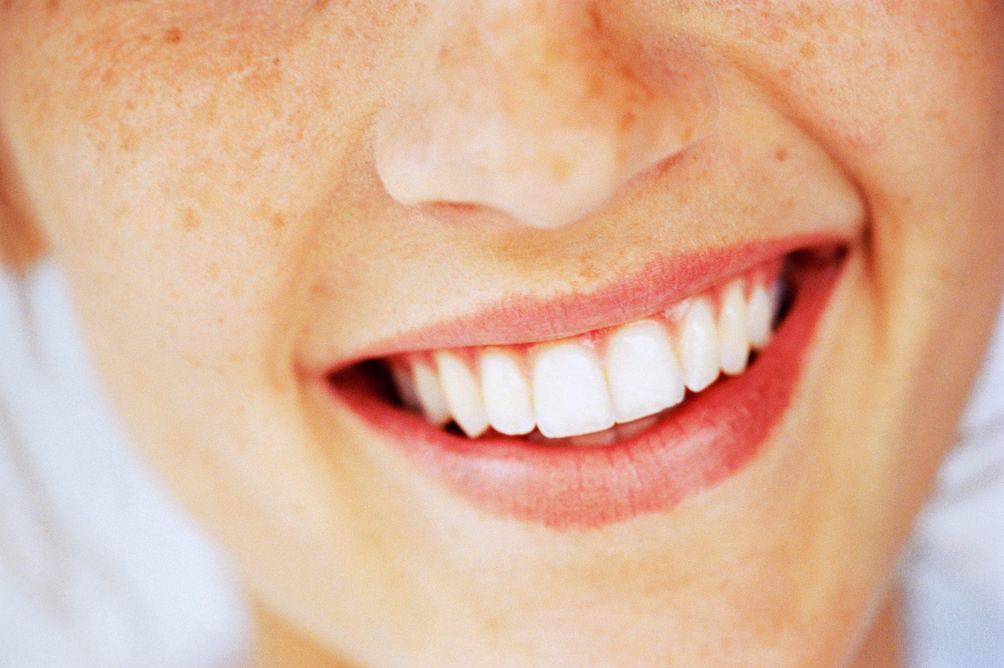 Boca y sonrisa sana en verano