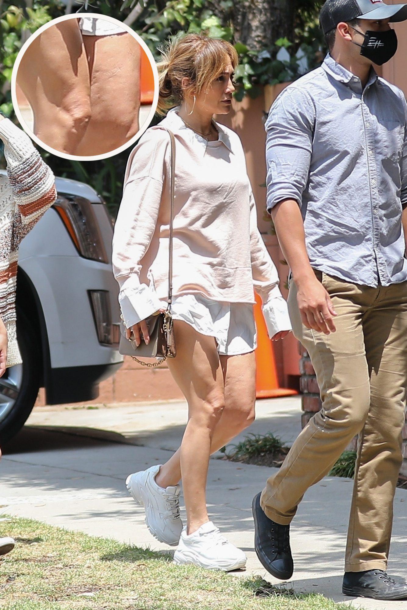 Jennifer Lopez, celulitis