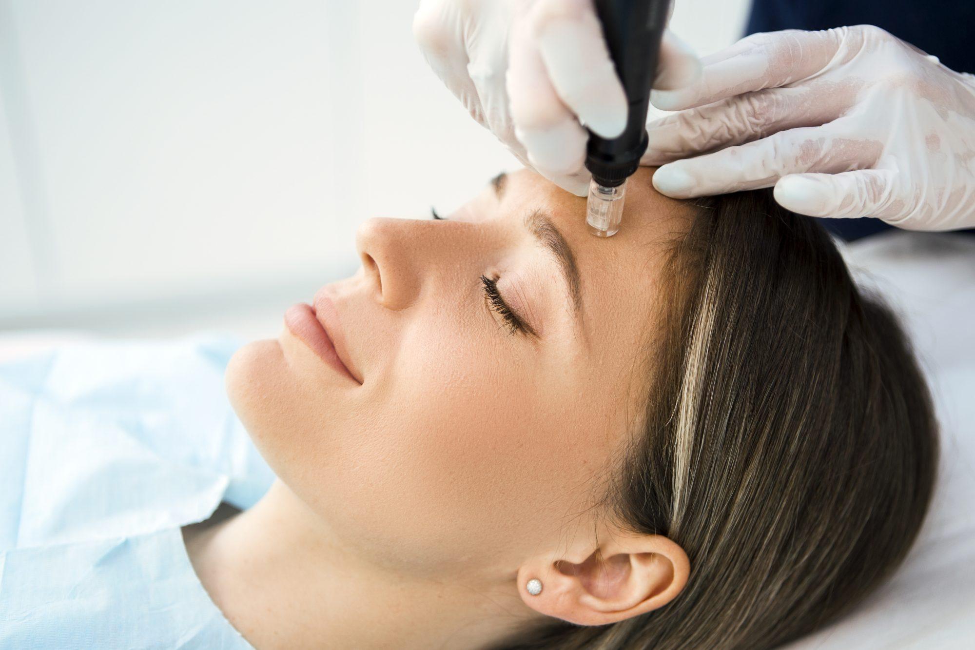 Mujer piel elimina manchas tratamientos
