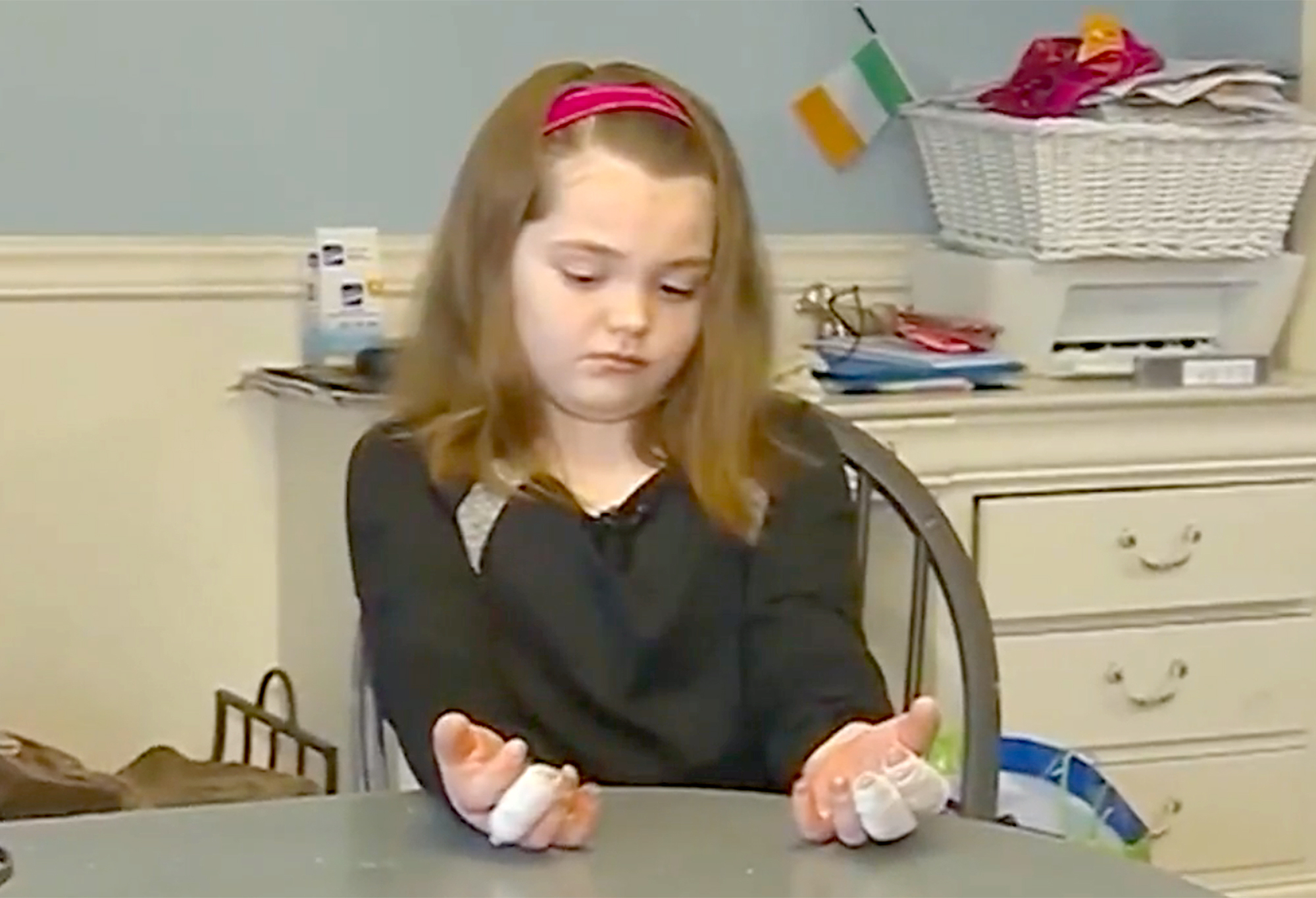 11-Year-Old Massachusetts Girl Suffers Third-Degree Burns on Hands After Making Homemade Slime