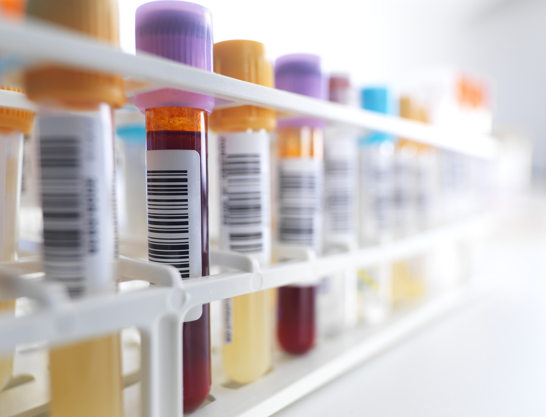 Blood samples in a test tube rack.
