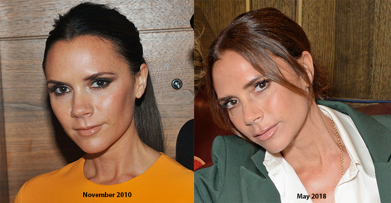 Victoria Beckham Looks Younger Now, Here's What Products She Uses