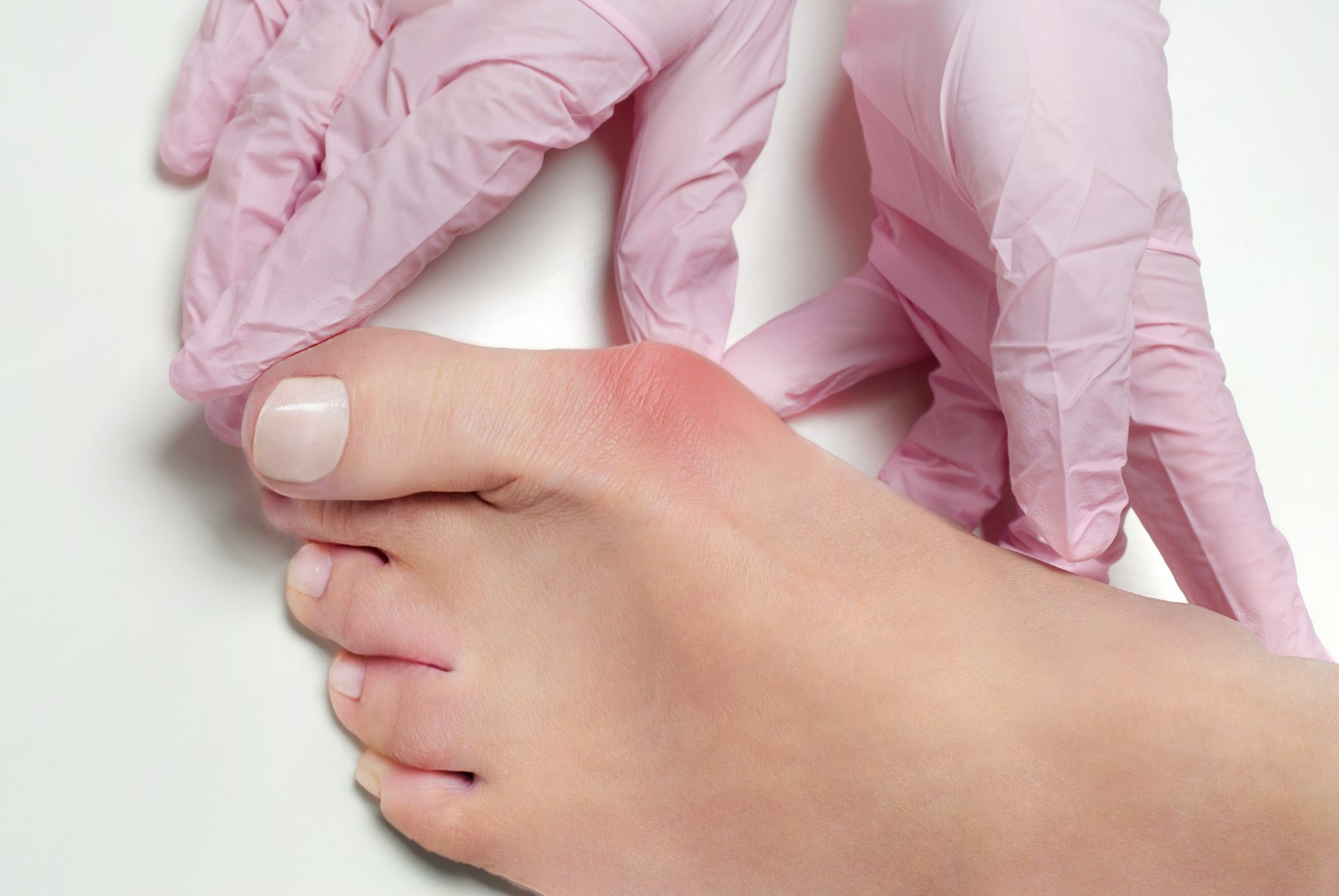 close-up of foot with bunion
