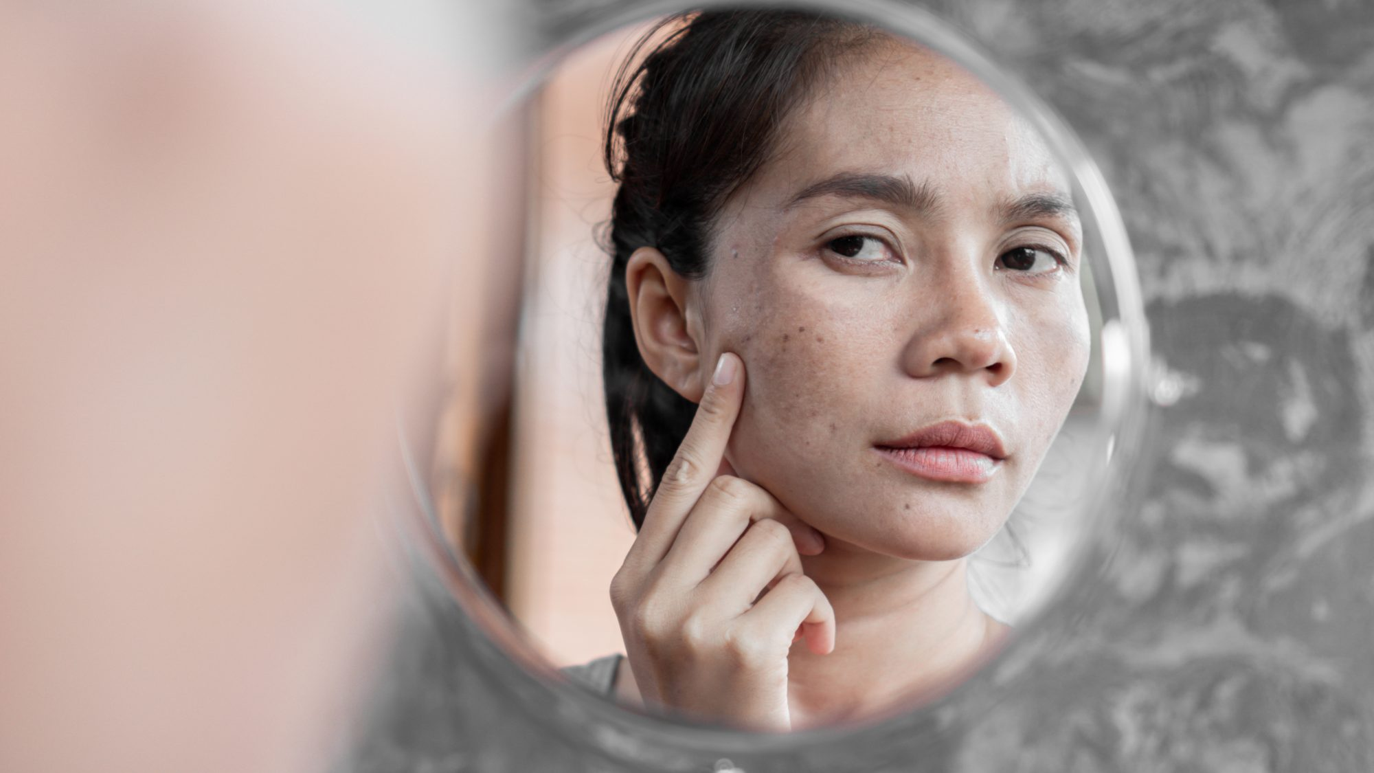 Close-Up Of Woman With Stressed Skin Looking In Mirror