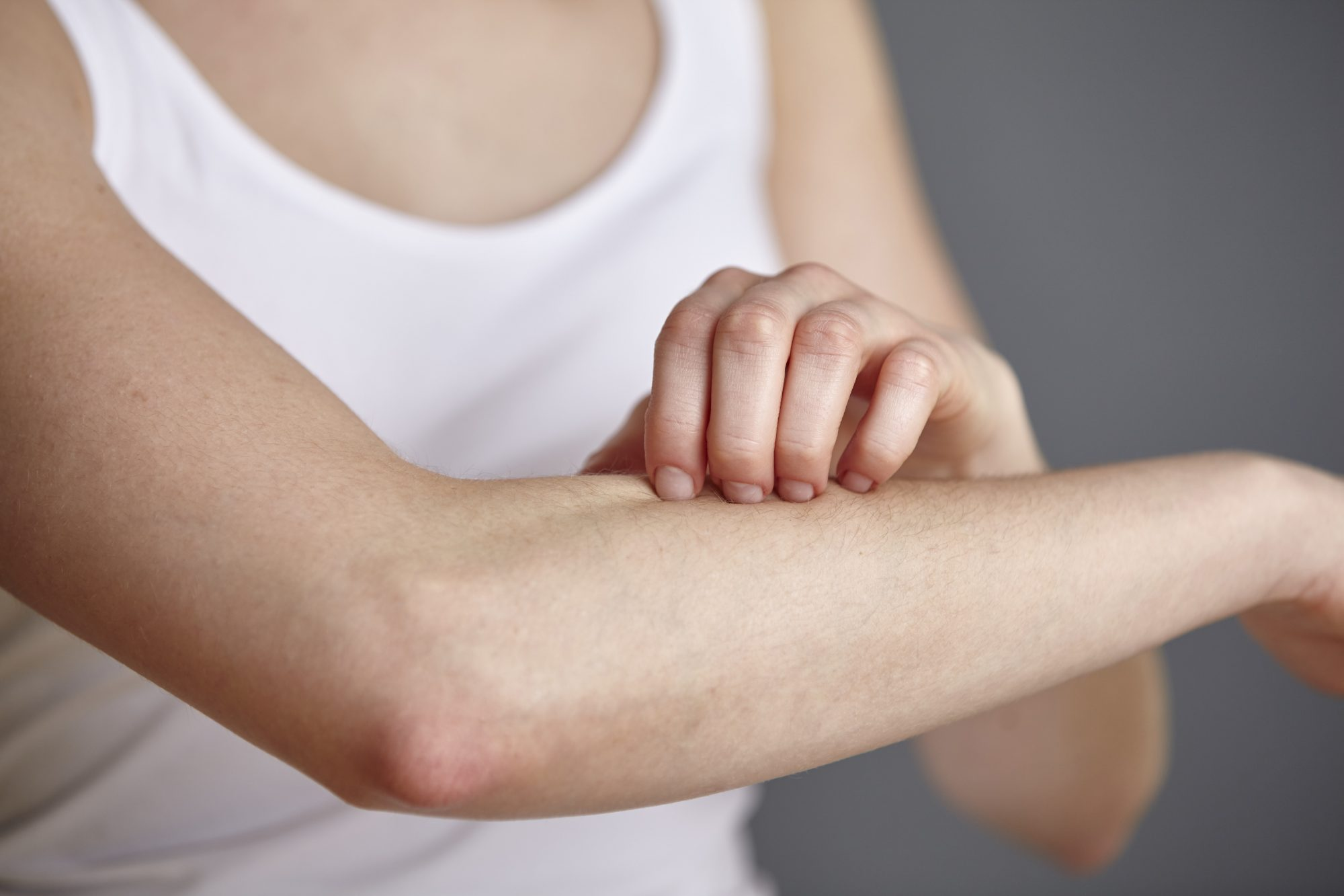 eczema-triggers: woman scratching arm