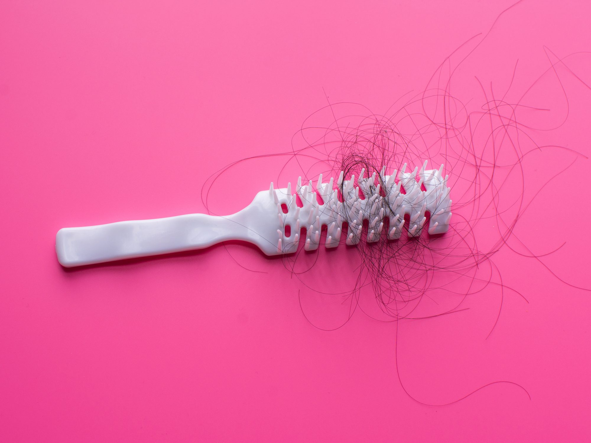 too-much-hair-loss: brush with hair in it