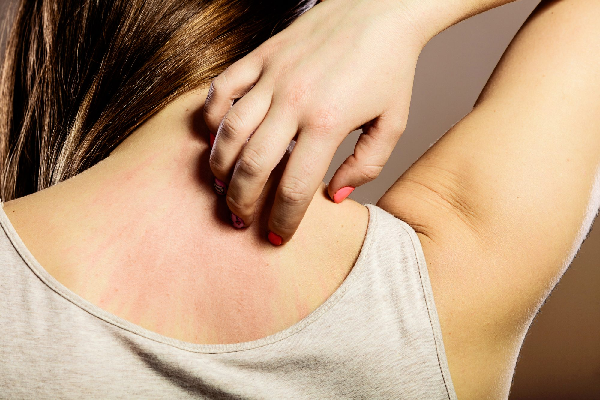 can-you-grow-out-of-eczema: woman scratching back