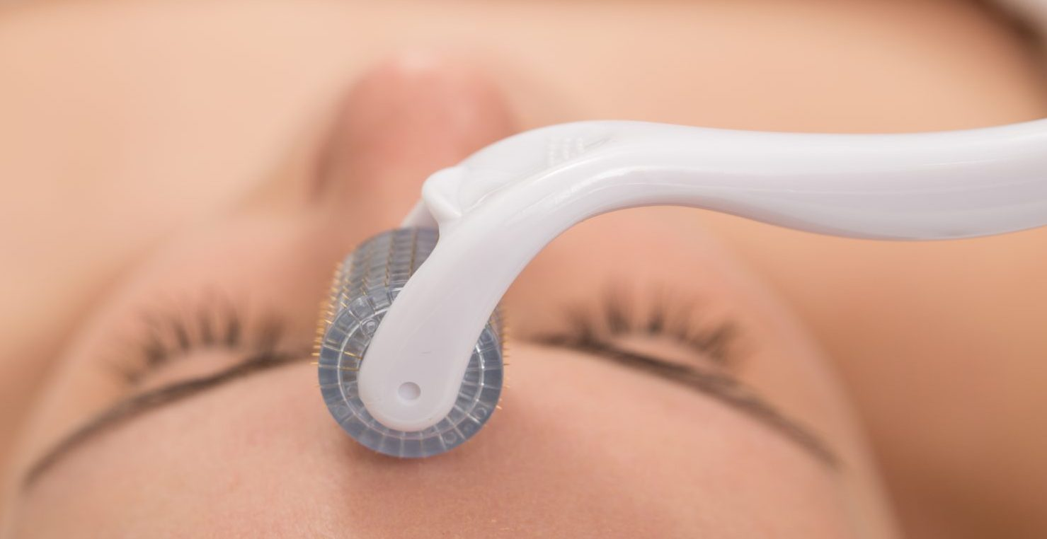 Does At-Home Microneedling Actually Work? I Pricked My Face Hundreds of Times To Find Out