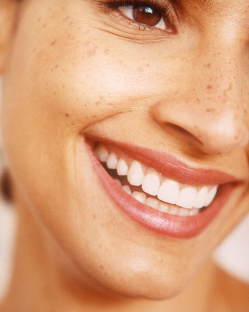 One to Three Months Before: Think About Brightening Your Smile