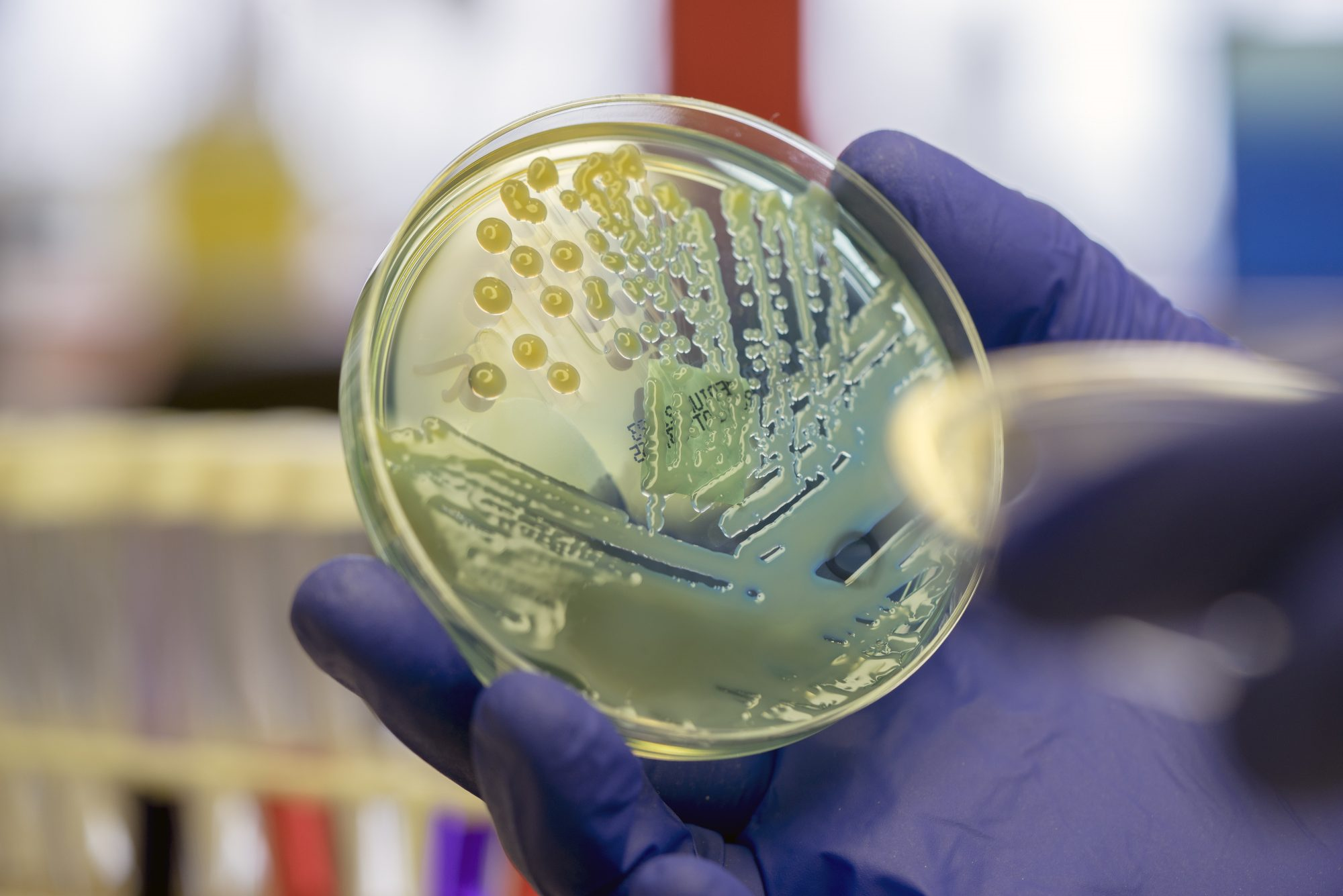 Microbiologist examining a multi-drug resistant coliform bacteria on CLED agar plate