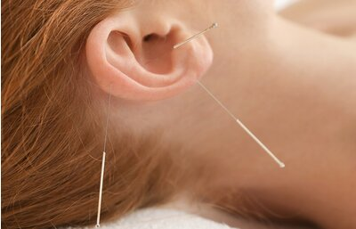 Should You Try Ear Acupuncture or Ear Seeds for Weight Loss