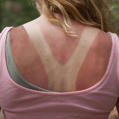 This Sunburn Horror Story Shows Expired Sunscreen Doesn't