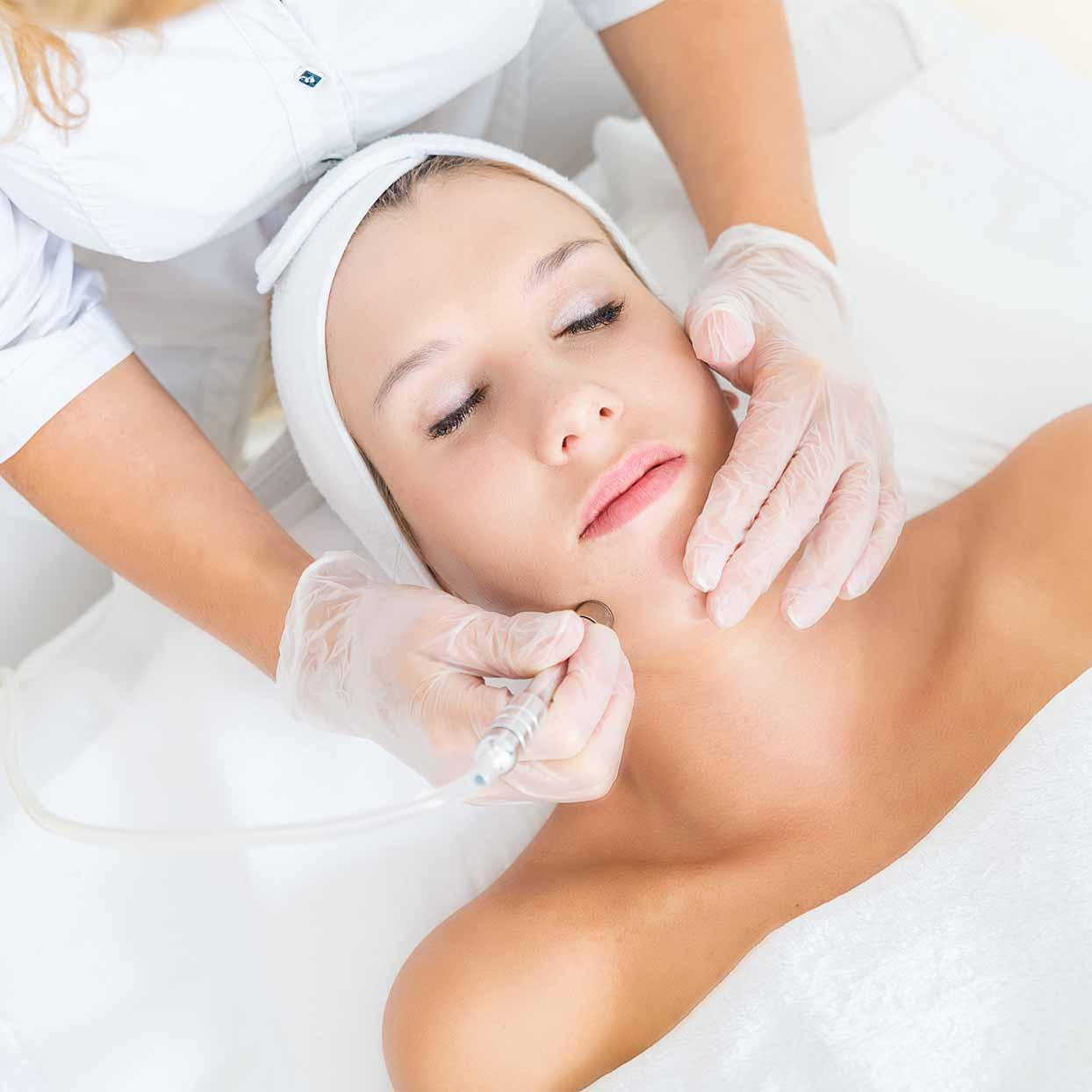 microdermabrasion explainer tout