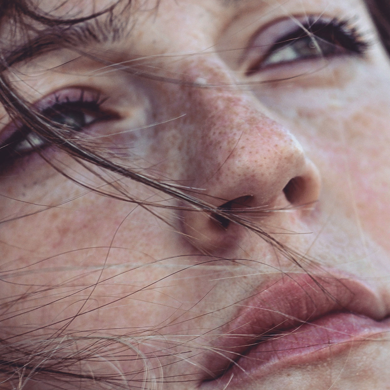 Close-Up Of Woman with freckles and red spot on her nose