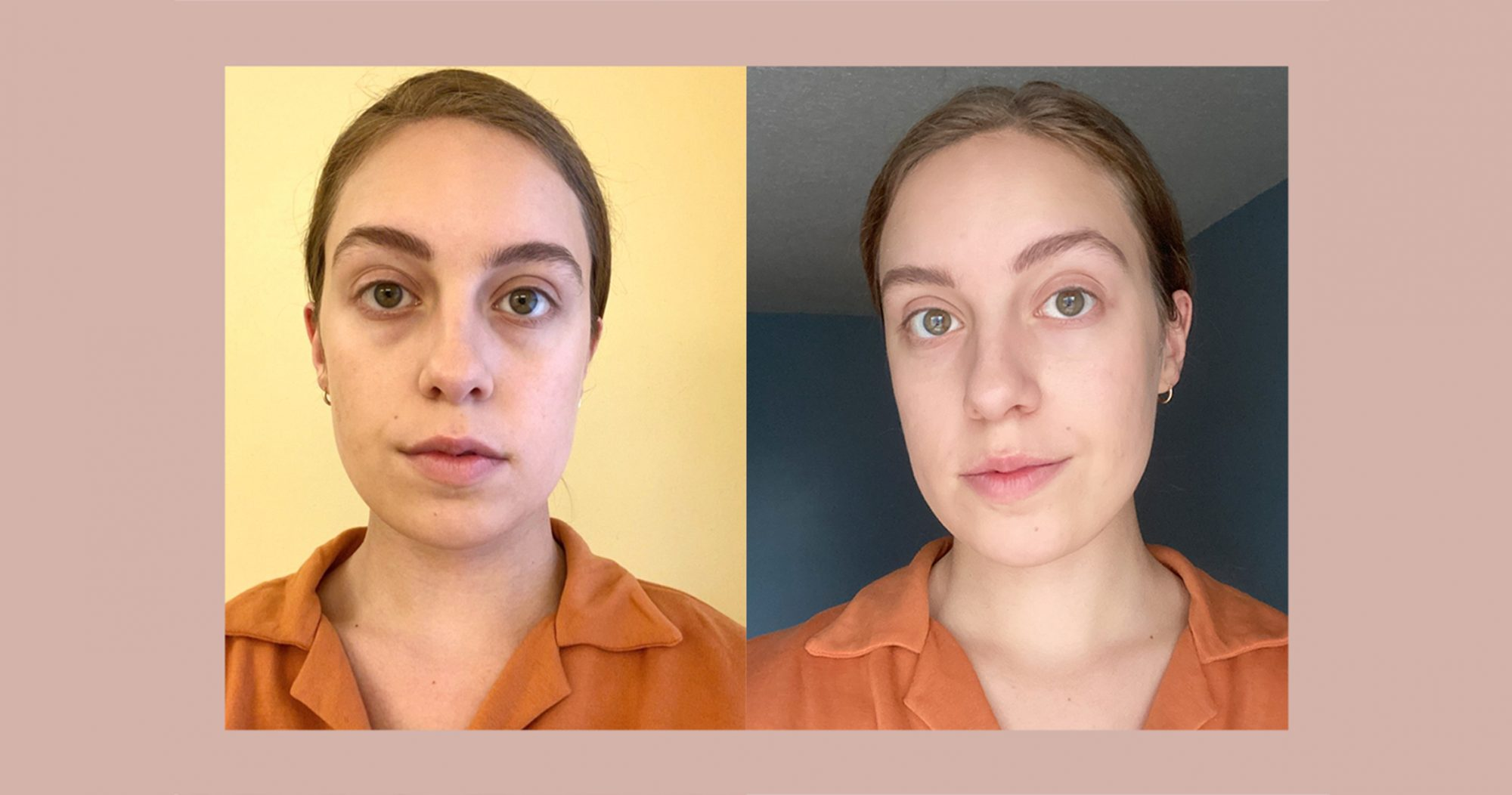 Morgan Noll before and after using skyn ICELAND Dissolving Microneedle Eye Patches