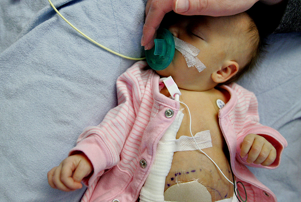 baby recovering from gastroschisis birth defect