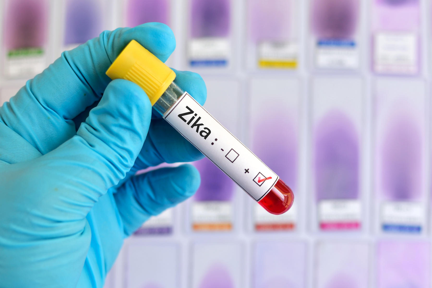 Zika Virus test tube