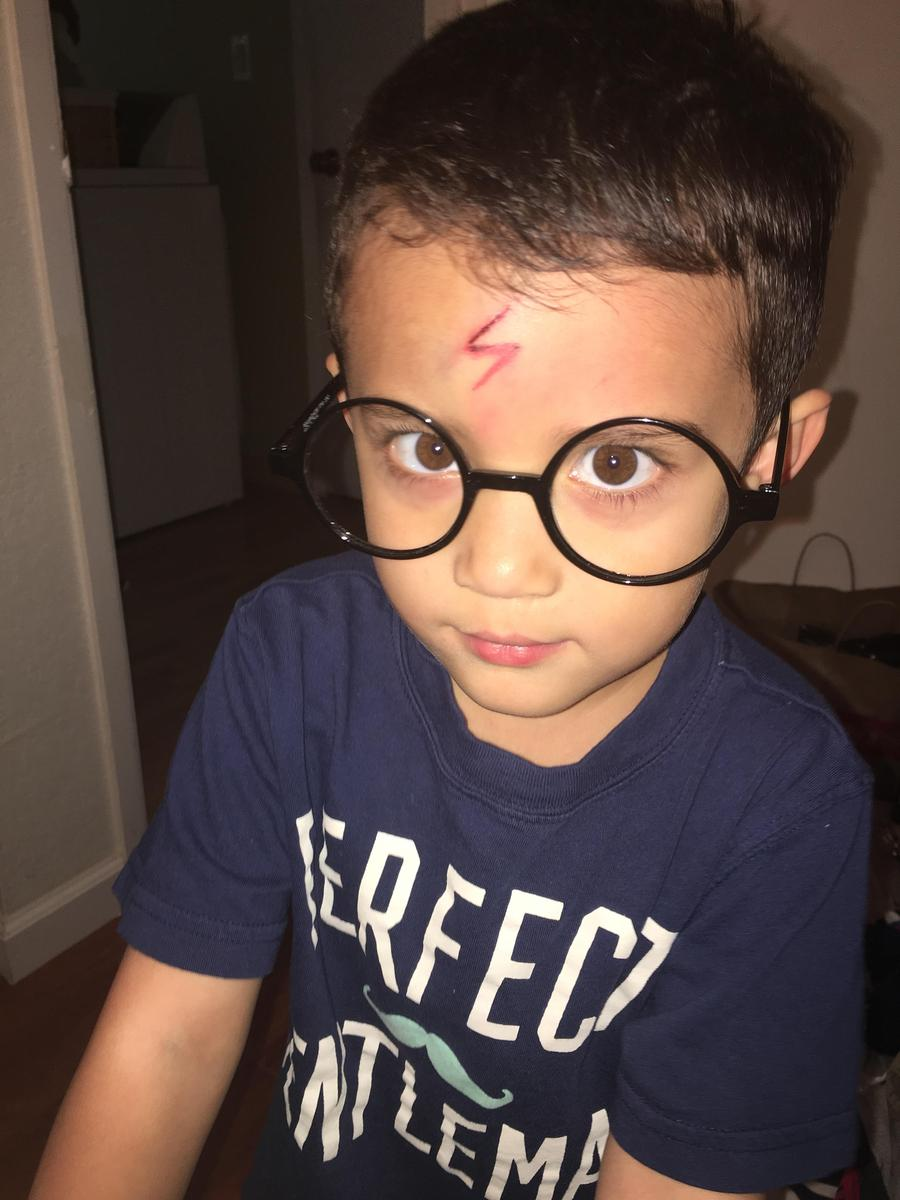 Mom turns son's forehead cut into Harry Potter's scar.
