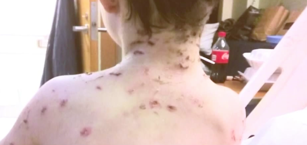 boy survives dog attack