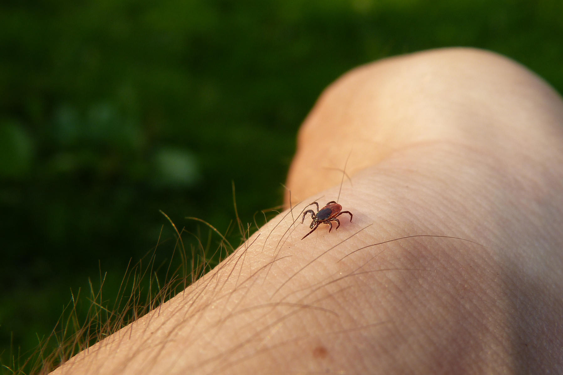 Tick on Skin of Person's Arm