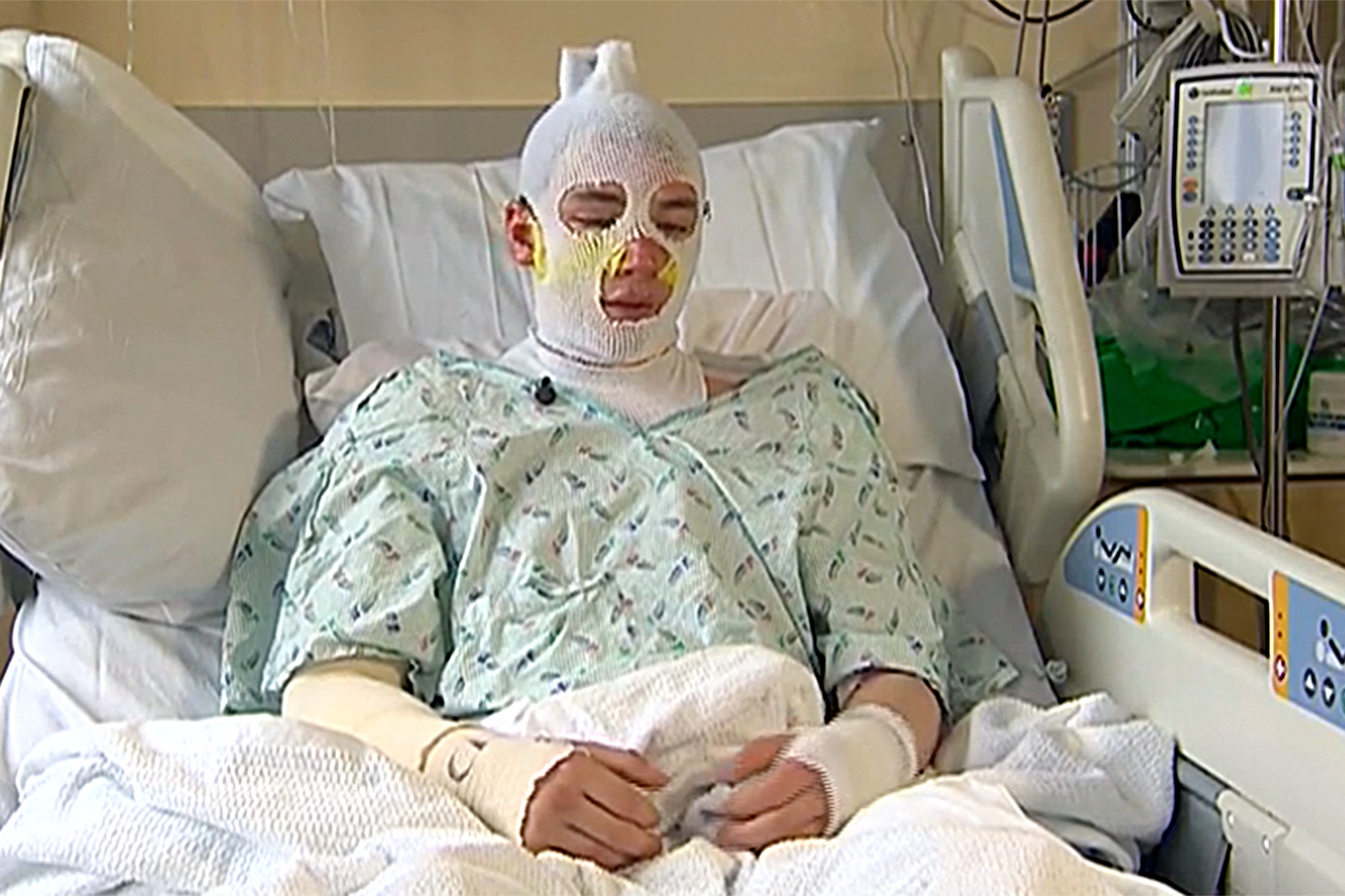 Uncle Derrick Byrd In Hospital Bed with Bandage Wrapped on Face and Body