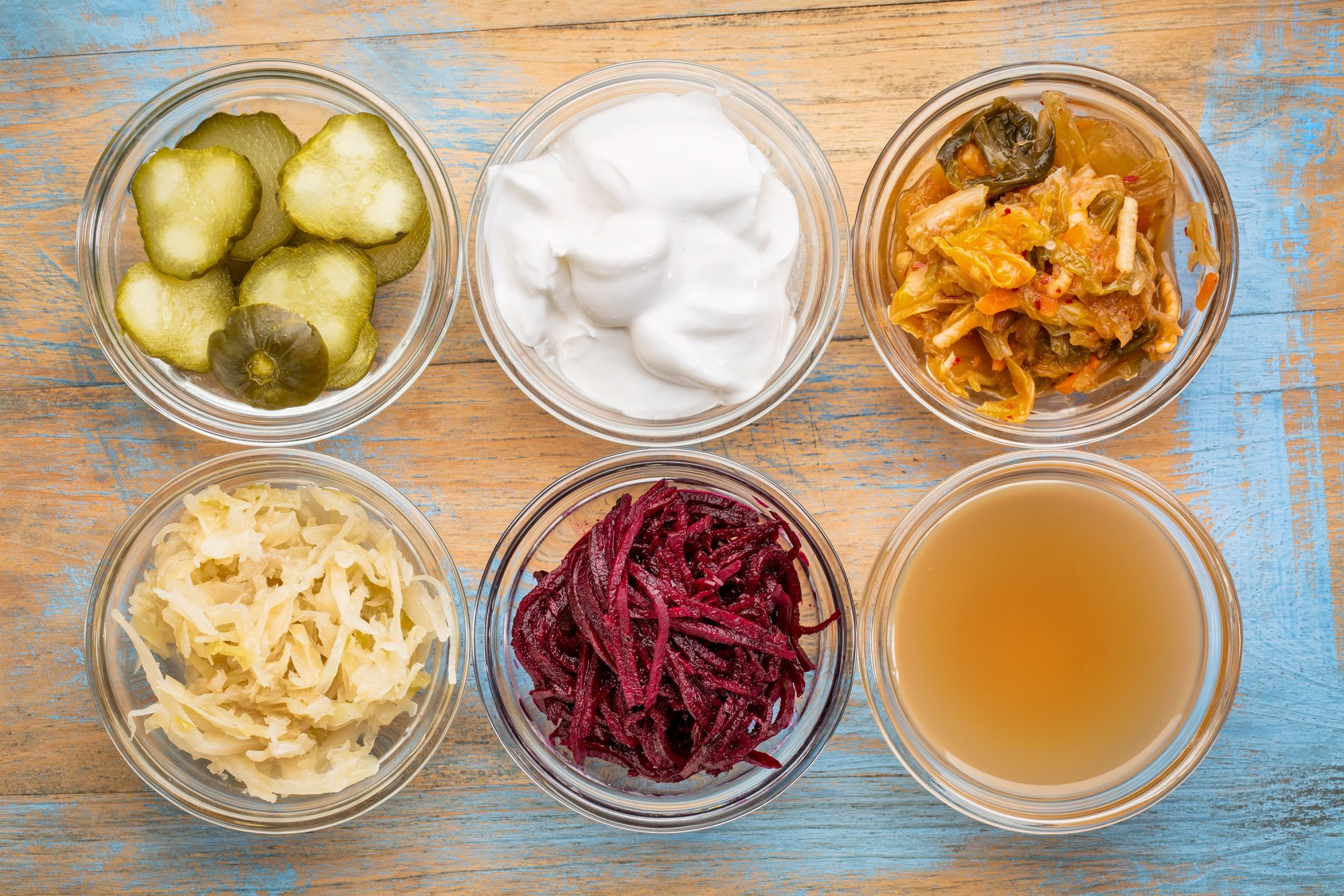 Your Ultimate Guide to Fermenting