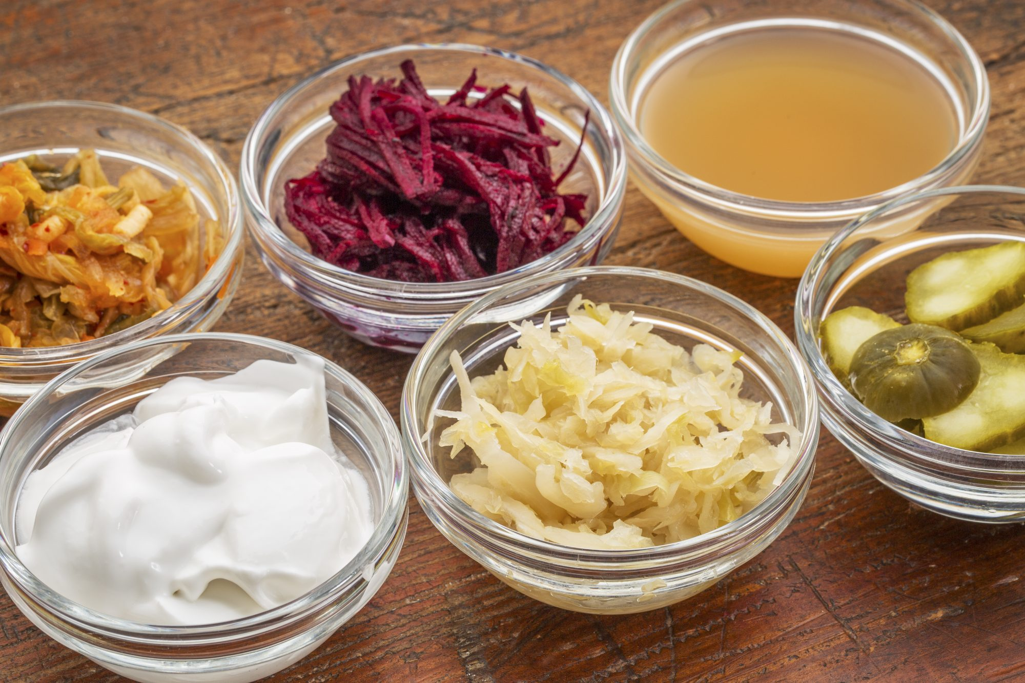 What Are Probiotics? 5 Things You Need to Know