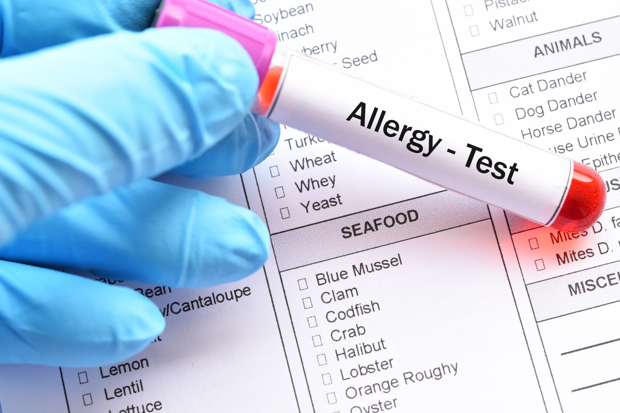 blood test to determine food allergies