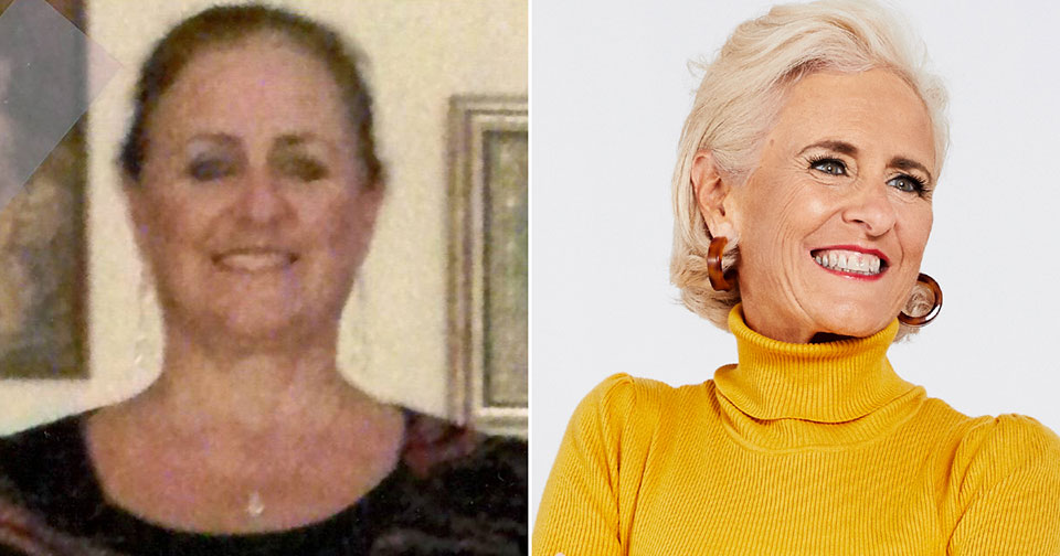 Debbie Baker before and after photos
