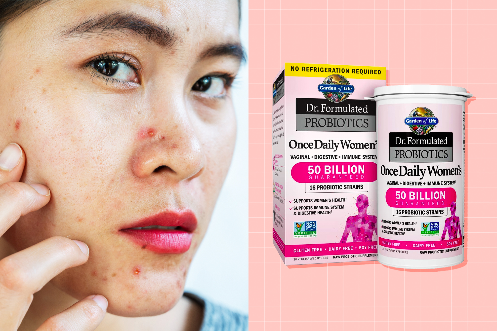 A close up of a woman with acne nextt to an image of Garden of Life Probiotic Supplement Capsules for Women