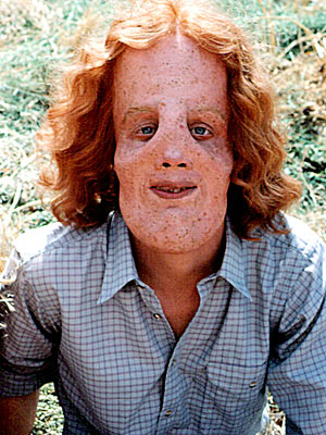 Mask | Based on a true story, Rocky Dennis (Eric Stolz) is a sweet teen but spends much of his time with his biker mother (Cher) due…