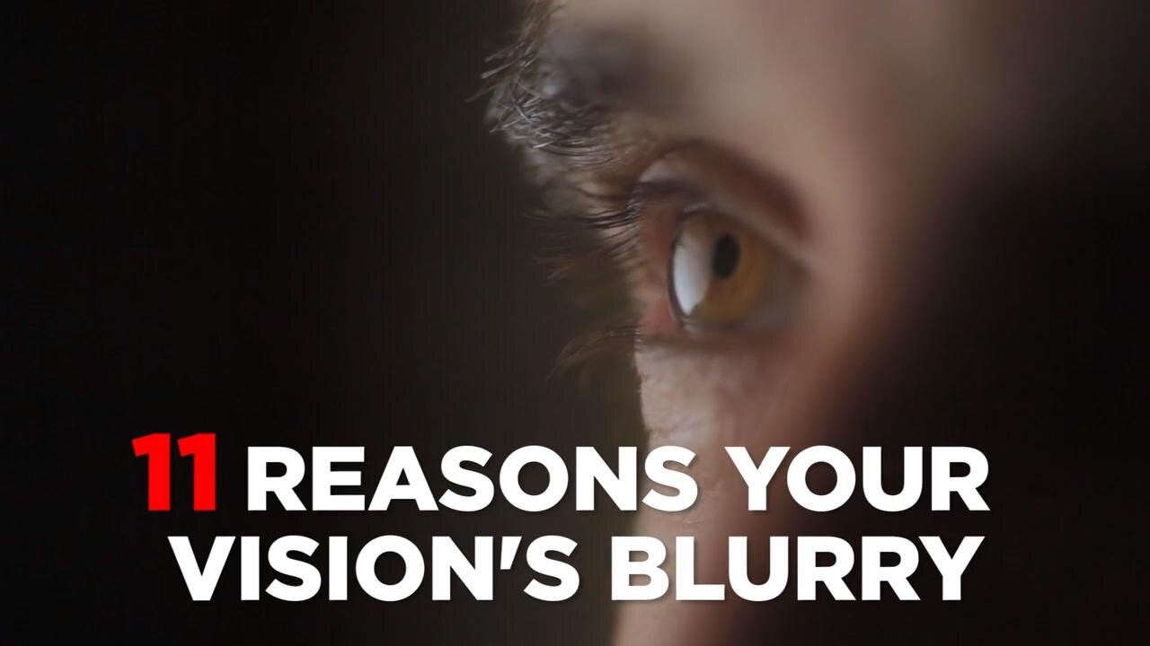 Keep Your Eyes Open Slow Down Wear >> Why Eyes Are Red And How To Get Rid Of Bloodshot Eyes Health
