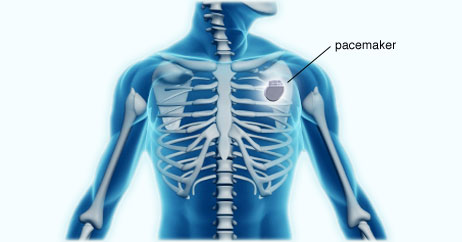 How a Pacemaker Can Give Your Heart New Life