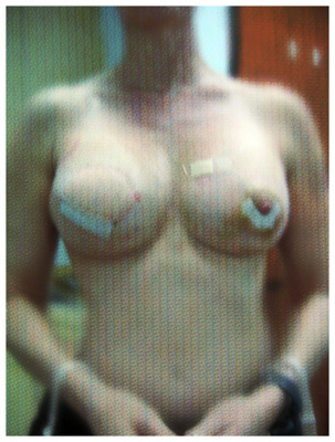 post-breast-reconstruction