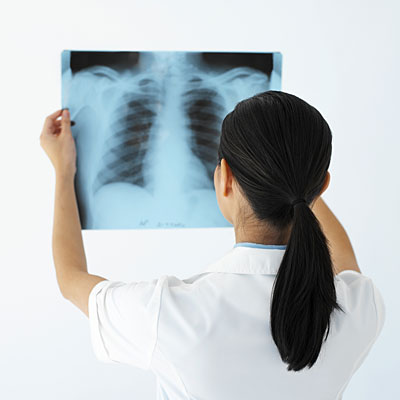 dr-looking-lung-x-ray