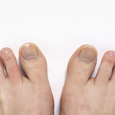 healthy-toe-nails-sign