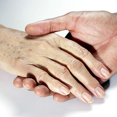 age-spots-hand