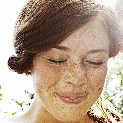 Befriend your freckles