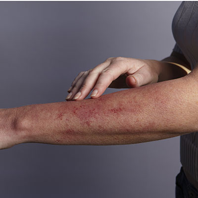 Rashes and red spots