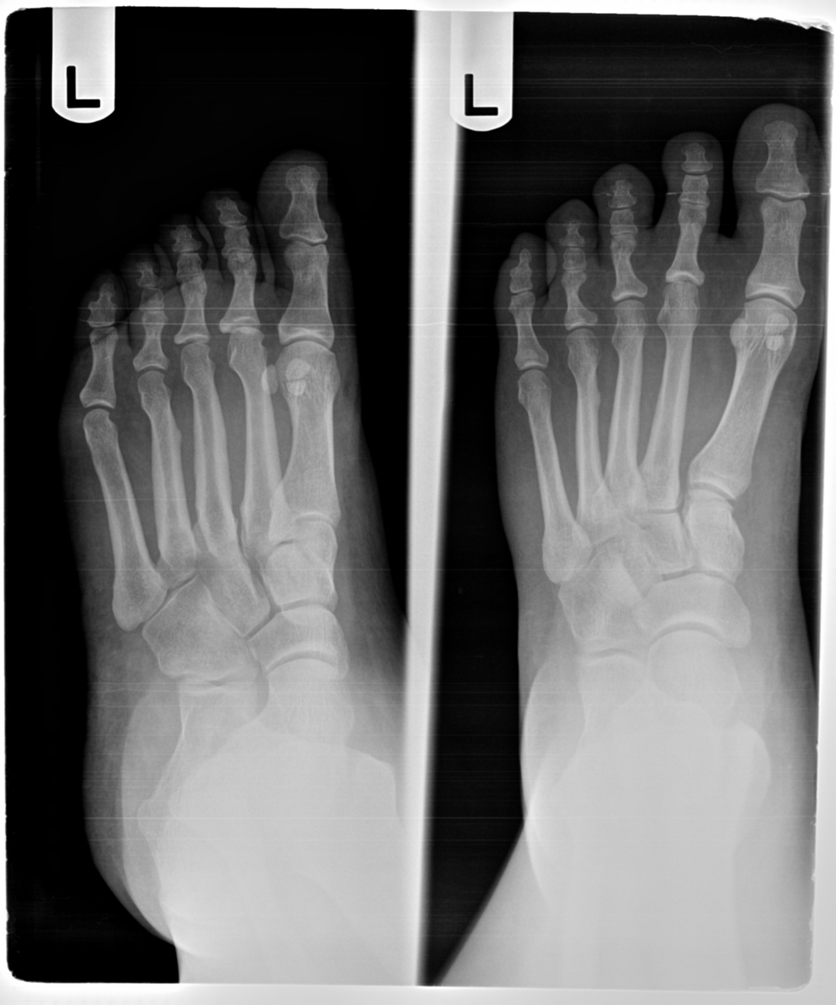 How to Identify a Stress Fracture