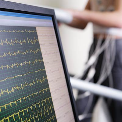 Skip: Exercise stress test for heart disease