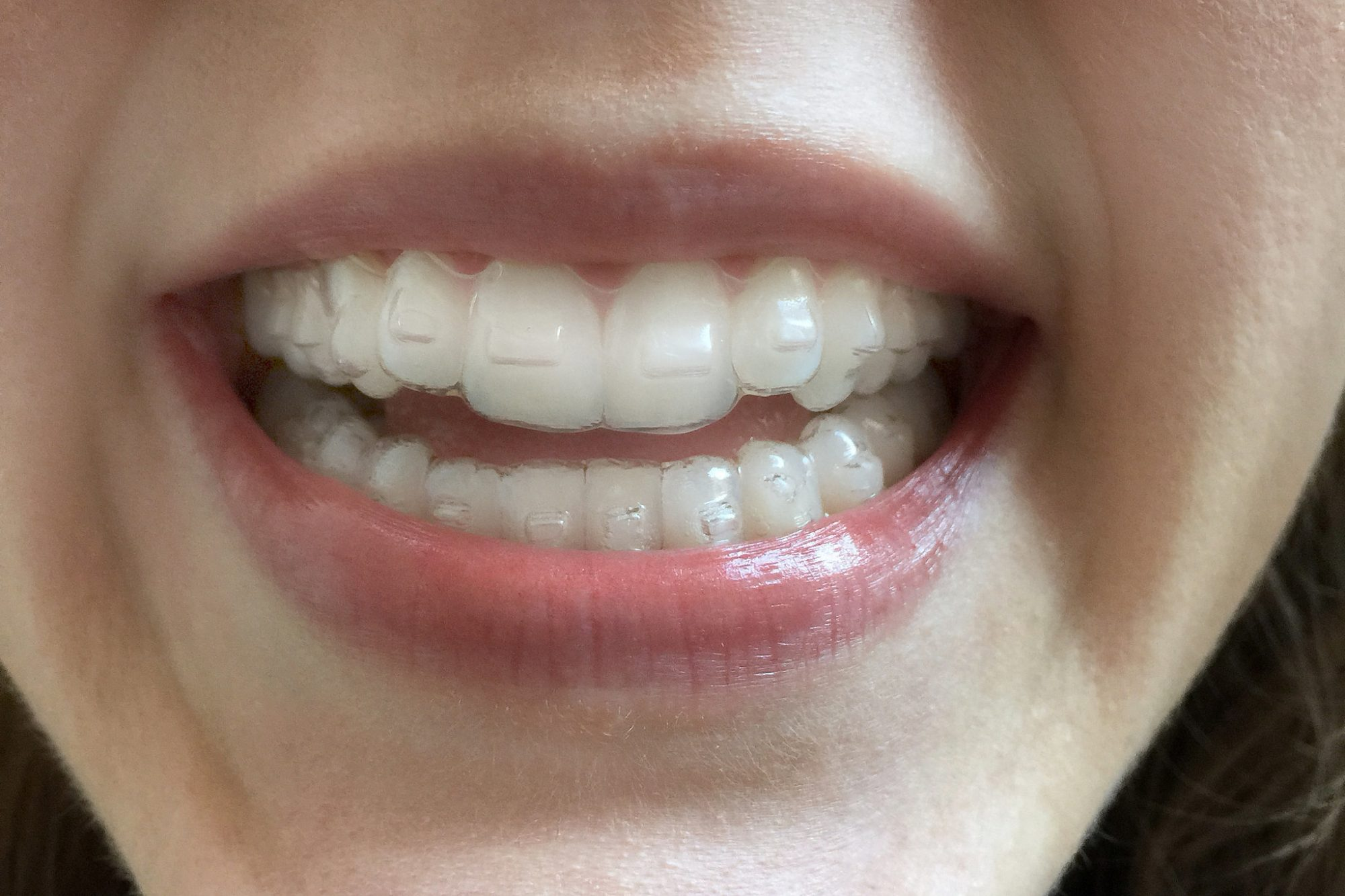 11 Things I Wish I D Known Before I Got Invisalign Health