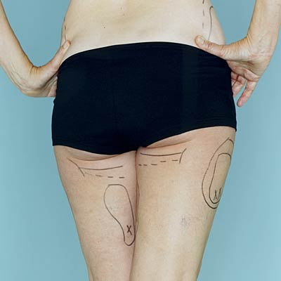 Liposuction will make your legs (or arms, or tummy) look better