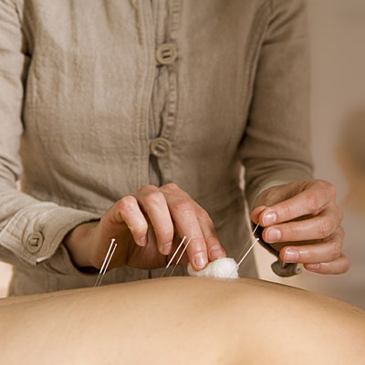 acupuncturist-incontinence
