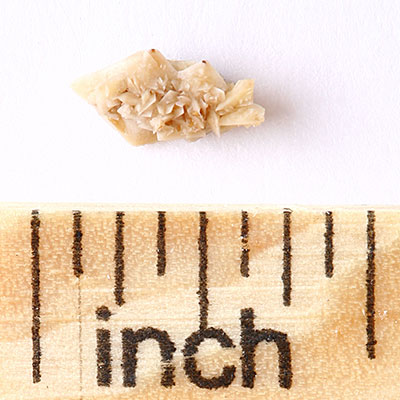 What are kidney stones, exactly?