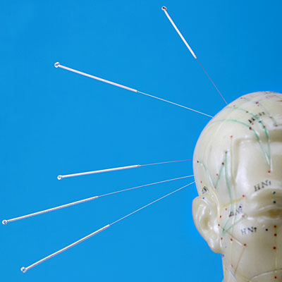 acupuncture-headache-doll