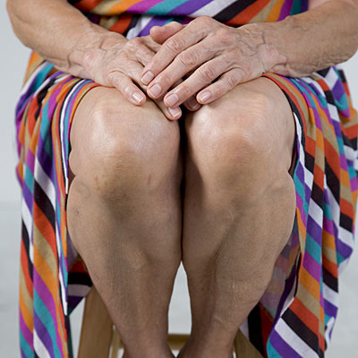 6 Ways to Prevent Knee Problems Health