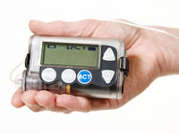 Why One Woman With Type 2 Diabetes Uses an Insulin Pump