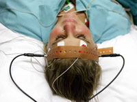 What Electroconvulsive Therapy (ECT) Feels Like